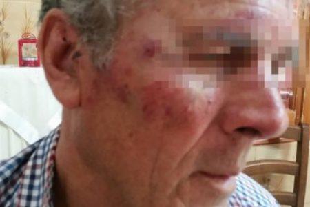 Σάμος: Τούρκοι ξυλοκόπησαν 73χρονο επειδή άκουγε εκκλησιαστική μουσική! – Αγοράζουν μανιωδώς ακίνητα στο νησί (φώτο)