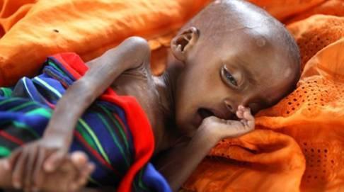 1.5 Εκατ. νεκροί από την πείνα. Αλλά η πείνα δεν είναι μεταδοτική και έτσι δεν μας αφορά.!!!!