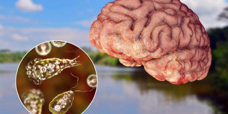 Ανησυχία για εξάπλωση της αμοιβάδας που τρώει τον εγκέφαλο στις ΗΠΑ (ΒΙΝΤΕΟ).