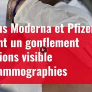 Σύμφωνα με πολλούς Αμερικανούς ακτινολόγους, τα εμβόλια Pfizer,Moderna προκαλούν οίδημα των λεμφαδένων!!!