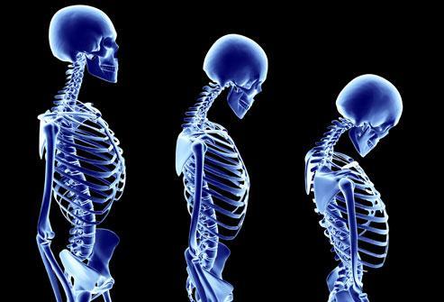 Αυξημένος κίνδυνος οστεοπόρωσης σε ασθενείς με φλεγμονώδη νόσο εντέρου