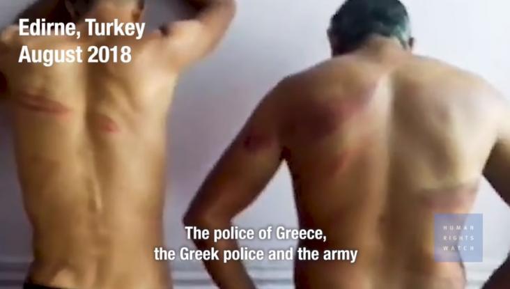 Αποκαλύπτουμε την Τουρκική προβοκάτσια, καμία σχέση με ξυλοδαρμούς και βασανιστήρια μεταναστών στο Έβρο .