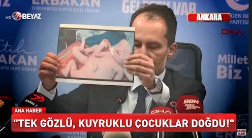 ΠΑΙΔΙΑ ΜΕ ΟΥΡΑ ΓΕΝΝΗΘΗΚΑΝ ΣΤΗΝ ΤΟΥΡΚΙΑ!!! Η τουρκική τηλεόραση προβάλλει φρικτές εικόνες μωρών παραμορφωμένων από τα εμβόλια Pfizer και Moderna.